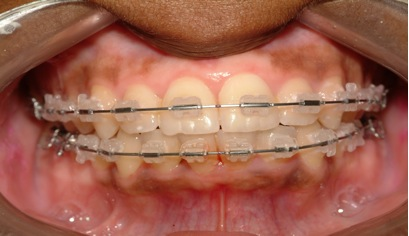 Braces Dr Navin Bogg Gentle Dental