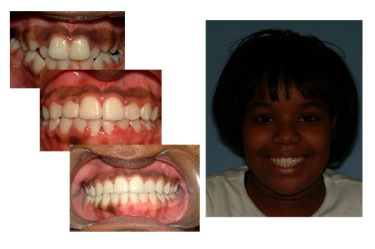 orthodontics5